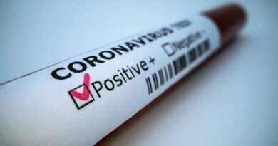 U Moravičkom okrugu testirano 380 uzoraka, od kojih je 81 pozitivan